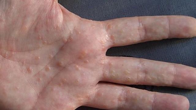 how to get over glandular fever naturally